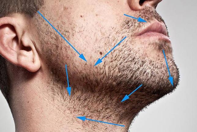 Схема бритья